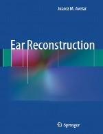 بازسازی گوشEar Reconstruction