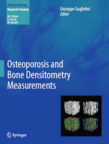 پوکی استخوان و اندازه گیری سنجش تراکم استخوان / Osteoporosis and Bone Densitometry Measurements