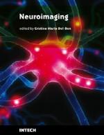 تصویربرداری از عصبNeuroimaging