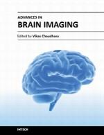 پیشرفت ها در تصویر برداری از مغزAdvances in Brain Imaging
