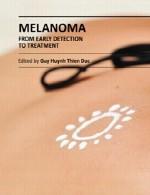 ملانوم – از تشخیص زود هنگام تا درمانMelanoma - From Early Detection