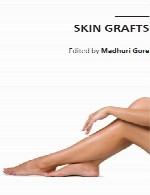 گرافت (پیوند) های پوستSkin Grafts