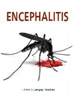 انسفالیتEncephalitis
