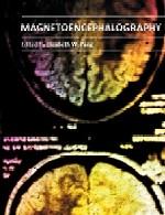 انسفالوگرافی (مغزنگاری) مغناطیسیMagnetoencephalography