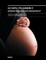 حاملگی خارج رحمی – تشخیص و مدیریت مدرنEctopic Pregnancy