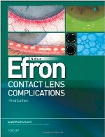 عوارض لنز های تماسیContact Lens Complications