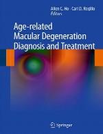 پیدایش لکه ماکولار (خالدار) مرتبط با سن – تشخیص و درمانAge-related Macular Degeneration