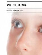 ویترکتومی (عمل چشم)Vitrectomy