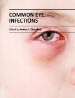 عفونت های چشمی متداولCommon Eye Infections