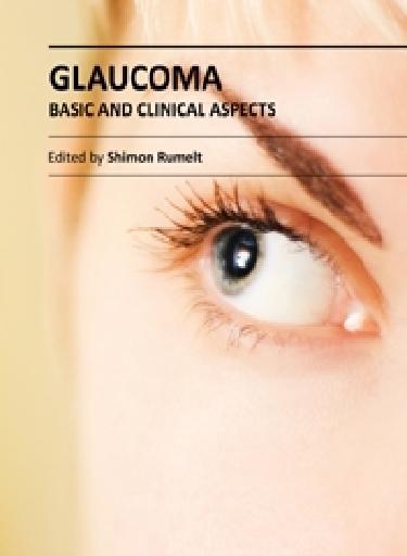 گلوکوم (آب سیاه) – جنبه های عمومی و بالینی / Glaucoma