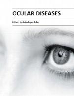 بیماری های چشمیOcular Diseases