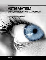 آستیگماتیسم – اپتیک (نور شناسی)، فیزیولوژی و مدیریتAstigmatism - Optics, Physiology and Management