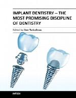دندانپزشکی ایمپلنت – نوید بخش ترین رشته دندانپزشکیImplant Dentistry