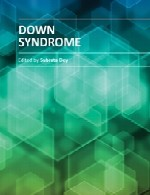 سندرم داونDown Syndrome