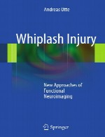 آسیب شلاق زدن – رویکرد های جدید تصویربرداری عصبی عملکردیWhiplash Injury