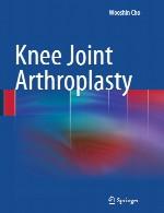 آرتروپلاستی مفصل زانوKnee Joint Arthroplasty
