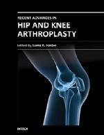 پیشرفت های اخیر در آرتروپلاستی (ترمیم مفاصل آسیب دیده از طریق جراحی) ران و زانوRecent Advances in Hip and Knee Arthroplasty