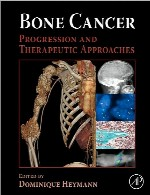 سرطان استخوان – پیشرفت و رویکرد های درمانیBone Cancer