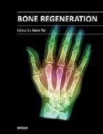 بازسازی استخوانBone Regeneration