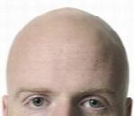 راهکارهای درمان ریزش مو